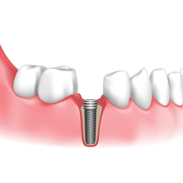 Implant Placement - Dental Services