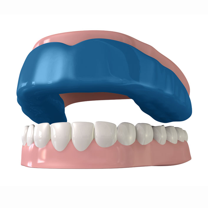 Athletic Mouth Guards - Dental Services