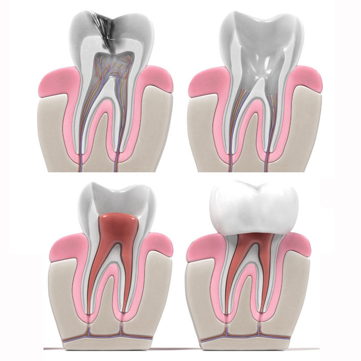 Root Canal - Dental Services