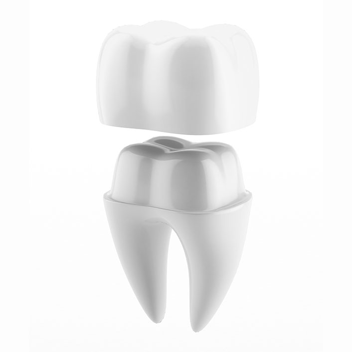 Same-Day Crown Technology - Dental Technology